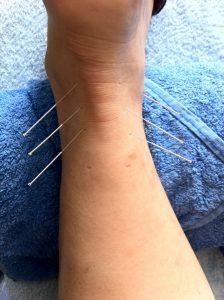 Akupunktur bei Sportverletzung
